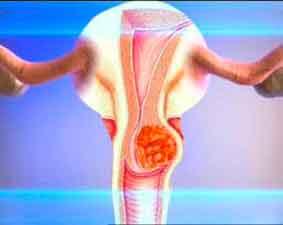 Как лечится рак шейки матки