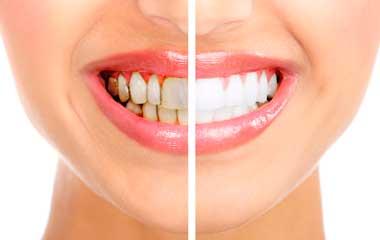 Чистка зубов от налёта и зубного камня