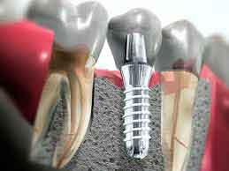 Современное зубное протезирование