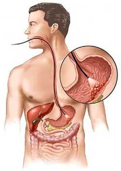 О раке желудка
