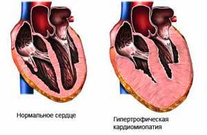 Гипертрофия миокарда правого или левого желудочков