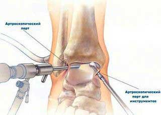 Артроскопия у пожилых людей