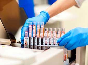 Биохимический-анализ-крови