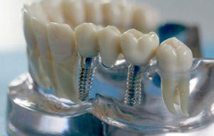 379Базальная имплантация зубов витебск